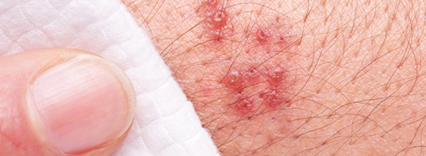 What should I include in a term paper about the disease shingles?